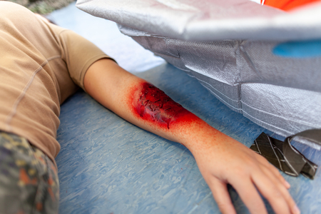 Foto de first aid bandage on burnt wound victim - Imagen libre de derechos