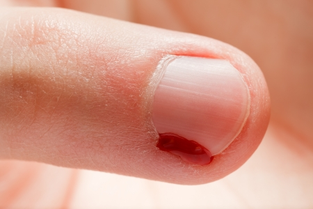 Physical injury blood wound human hand finger nail