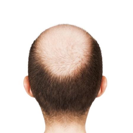 Human alopecia or hair loss - adult men bald head