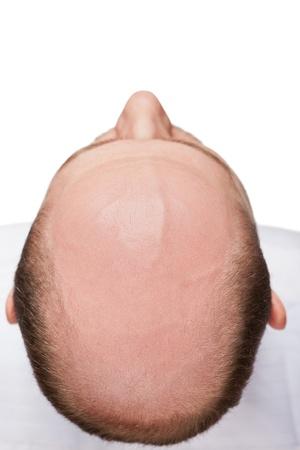 Photo for Human alopecia or hair loss - adult man bald head top view - Royalty Free Image