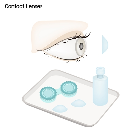 Ophthalmology Concept, Illustration of Take Care of The Eye with Contact Lenses, Container and Bottle of Solution.