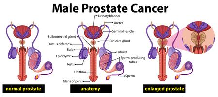 Illustration pour Male prostate cancer diagram illustration - image libre de droit