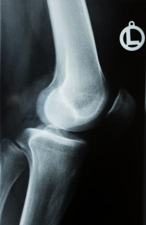 X-ray photograph or Röntgen image of a human knee with tibia, femur, fubula and patella