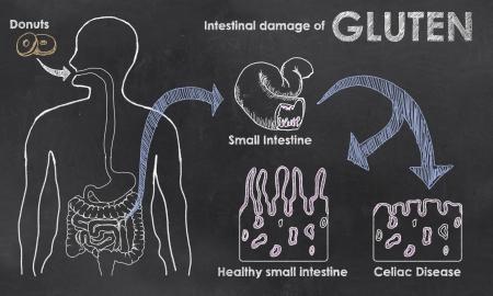 Photo pour Intestinal Damage of Gluten on a Blackboard - image libre de droit