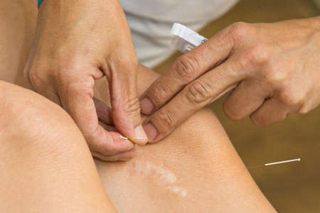 Photo pour Acupuncture on the knee, treatment of osteoarthritis in the knee - image libre de droit