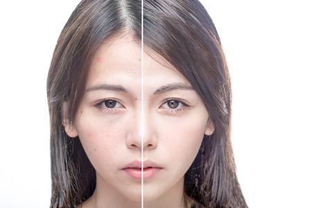 Foto de Asian woman's face, beauty concept, before and after - Imagen libre de derechos