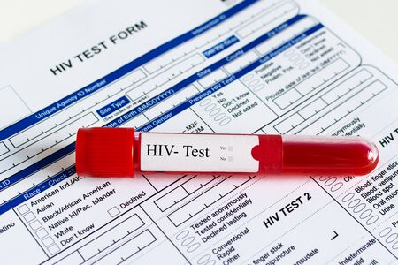 Red blood vial with blood sample over HIV test form background. Blood sample for HIV-Test checking.