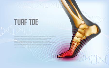 Ilustración de Horizontal turf toe foot traumas banner - Imagen libre de derechos
