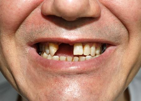 Photo pour Men smile without two front teeth - image libre de droit