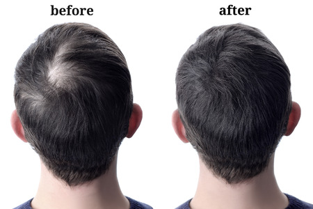 Foto de Men'shair after using cosmetic powder for hair thickening. Before and after - Imagen libre de derechos
