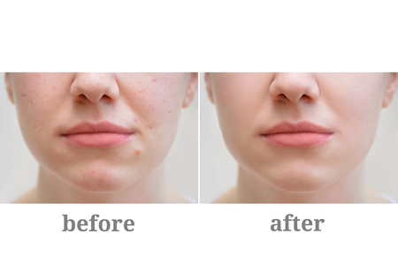 Photo pour Acne on the girl's face. Treatment of rosacea. Before and after. - image libre de droit