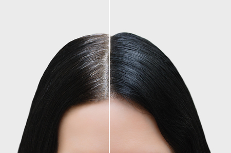 Photo pour Head of a girl with black gray hair. Hair coloring. Before and after. Close-up. - image libre de droit