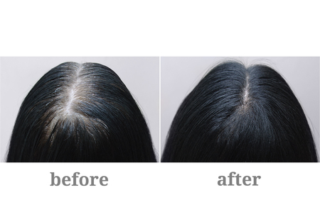 Foto de Head of a girl with black gray hair. Hair coloring.Top of the head. Before and after. - Imagen libre de derechos