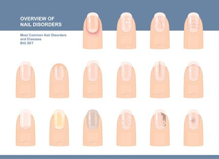 Illustration pour Most Common Nail Disorders and Diseases. Big set. Vector illustration - image libre de droit