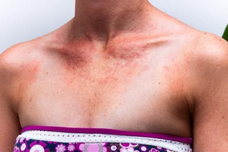 Detail of female sunburnt skin chest with allergic reaction.