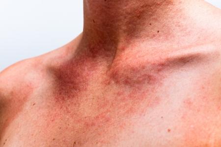 Photo pour Close up of female sunburnt skin neck with allergic reaction. - image libre de droit