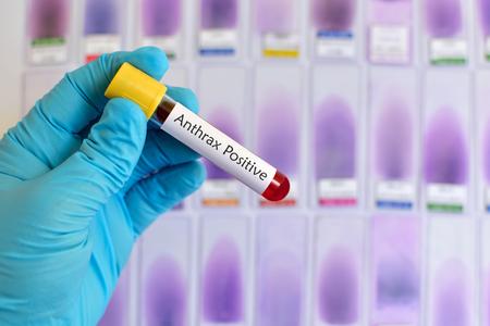 Anthrax positive blood sample
