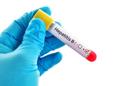Hepatitis B virus positive blood sample