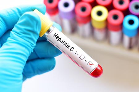 Hepatitis C virus positive