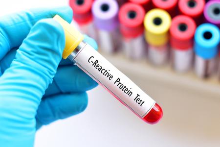 Photo pour Blood sample tube for C-reactive protein test - image libre de droit