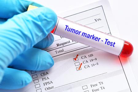 Photo pour Blood sample tube with laboratory requisition form for tumor marker test - image libre de droit