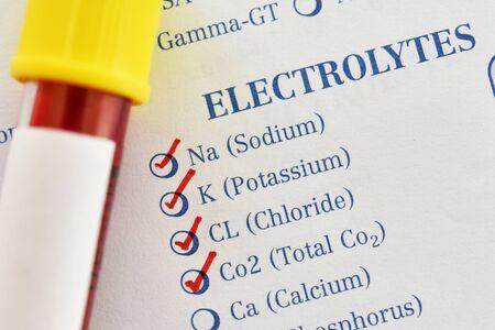 Photo pour Blood sample for electrolyte test - image libre de droit