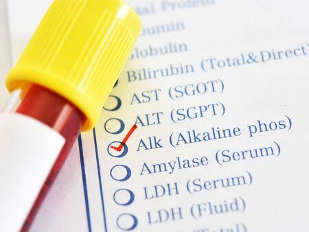 Photo pour Blood sample tube for alkaline phosphatase enzyme test - image libre de droit