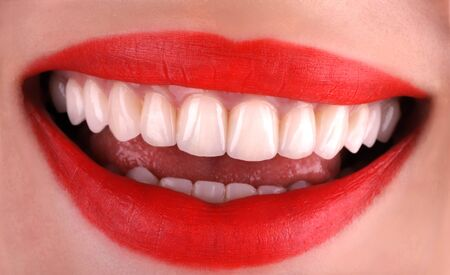 Photo for Perfect healthy teeth beautiful wide smile bleaching procedure whitening of young smiling attractive sexy red lips woman. Dental restoration treatment Close Up oral care, stomatology Dentistry - Royalty Free Image