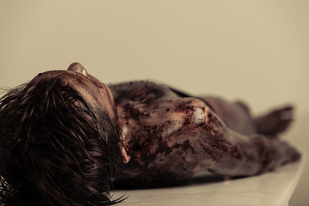 Photo for Close up Burnt Body of a Dead Young Boy Lying on the Table in Morgue, Emphasizing Head and Shoulder. - Royalty Free Image