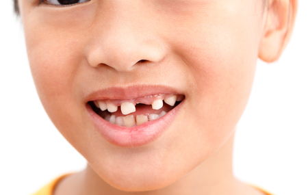 Photo pour Little girl Show Broken tooth with smile. Isolated on white background - image libre de droit