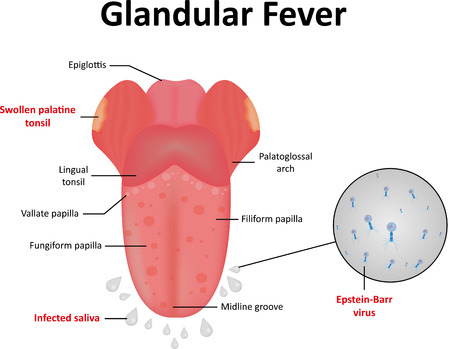 Glandular Fever