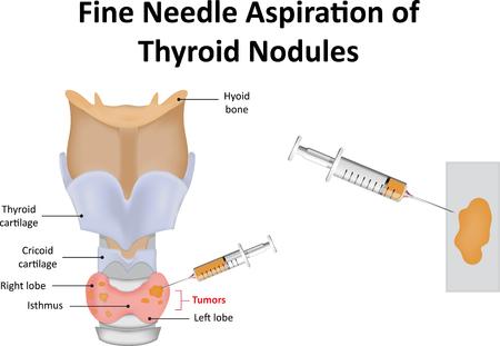 Fine Needle Aspiration of Thyroid Nodules