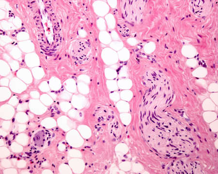 A septum of connective tissue, with numerous adipocytes (fat cells) which contain a large lipid droplet. The sinuous structures correspond to nerves. Light micrograph. Hematoxylin & eosin stain