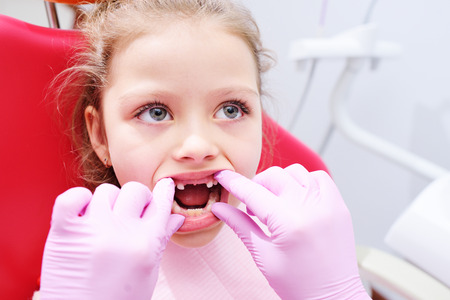 Foto per Little girl sitting on dental chair in pediatric dentists office. Early prevention, oral hygiene and milk teeth care. - Immagine Royalty Free