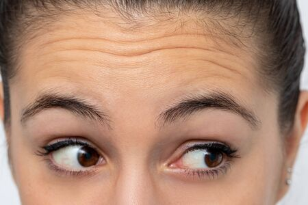 Photo pour Close up detail of woman looking aside frowning forehead. Prominent wrinkles shown on skin. - image libre de droit