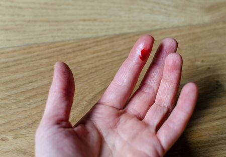 Foto de Finger with red blood drop caused by accident, knife cut. - Imagen libre de derechos