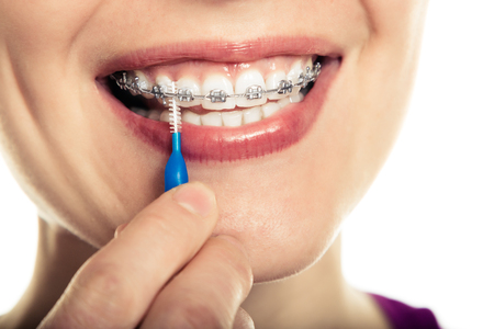 Photo pour Beautiful smiling girl with retainer for teeth brushing teeth on a white background. - image libre de droit