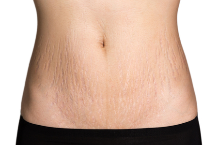 Foto de Belly Pattern fat stomach woman - Imagen libre de derechos