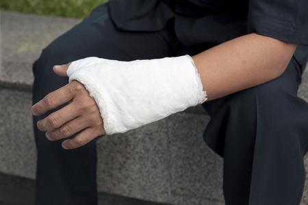 Broken Hand Injury Lizenzfreie Bilder Und Fotos