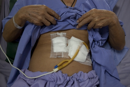patient show tube on stomach for feeding food