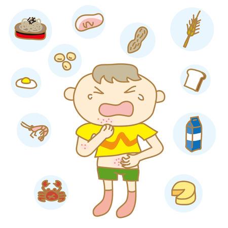 Children with food allergies