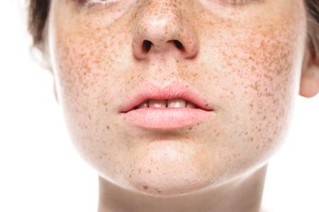 Photo pour Teeth smile mouth Young beautiful freckles woman face portrait with healthy skin. Studio shot. - image libre de droit