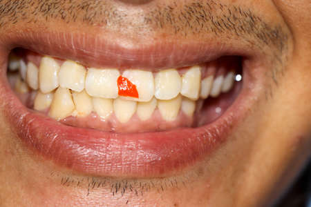 Photo pour Red chili fragments stuck in teeth - image libre de droit