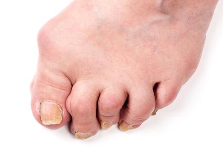 Rheumatoid polyarthritis on foot isolated on white background