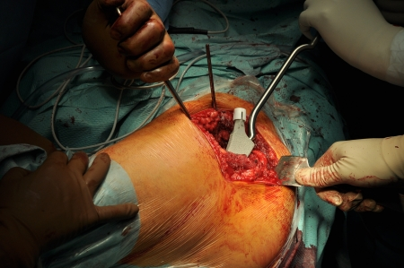 Prosthesis of the hip hospital operation