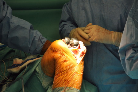 Prosthesis of the knee hospital operation