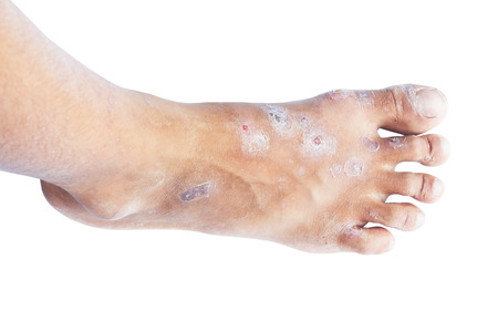 Foot syndrome.