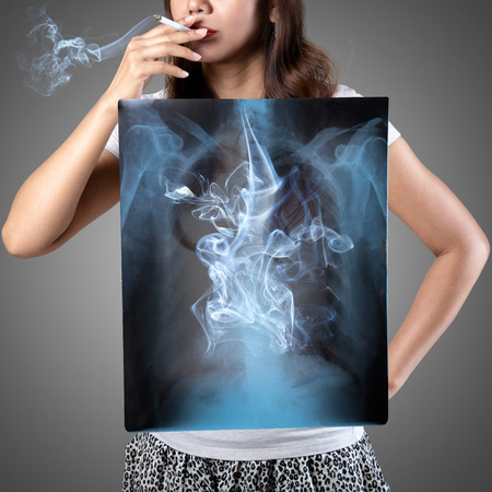 Femaie smoking with x-ray lung, Isolated on grey background