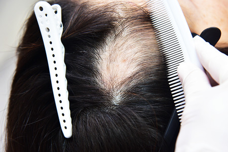 Foto de Treatment of baldness with beauty injections. Cosmetologist's hands in gloves make a subcutaneous injection. - Imagen libre de derechos