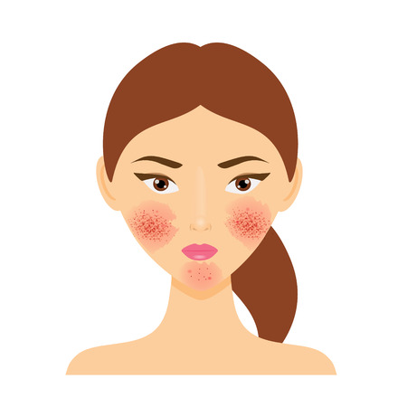 Illustration for Woman with rosacea, psoriasis skin disease - Royalty Free Image